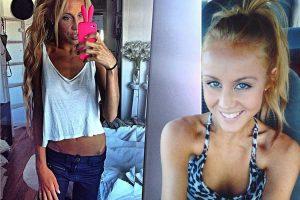 diatrofikes-diataraxes-anorexia-pieridou-maria-dietologos