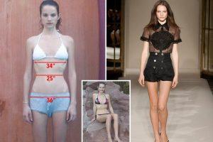 nevrogenis-anorexia-maria-pieridou-dietologos